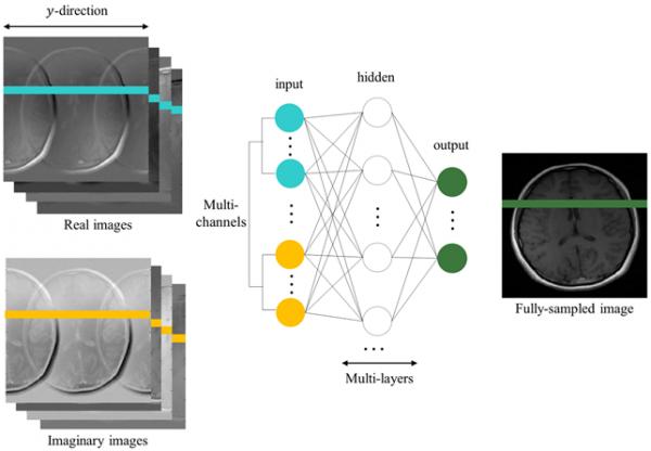 KAIST 연구팀이 개발한 머신러닝 기반 MRI 영상 복원법 모식도 - KAIST 제공